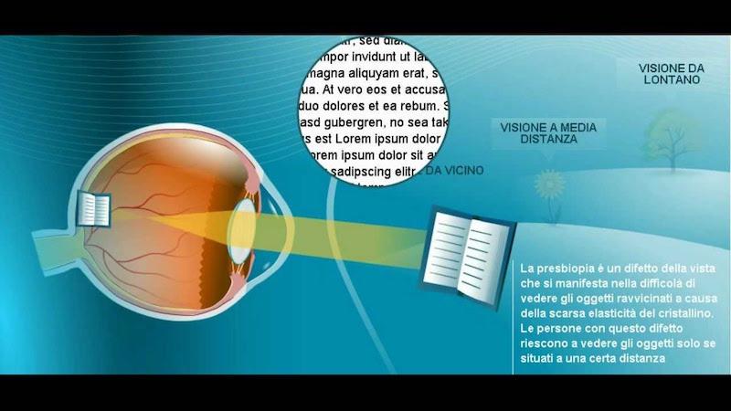 difetti della vista